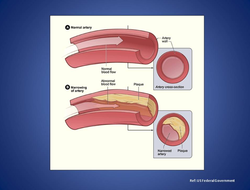 Atherosclerosis is a disease of your cardiovascular system